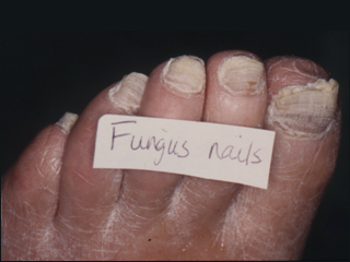 How can i tell if i have toenail fungus toenailfungustreatments examples of toenail fungus sciox Gallery