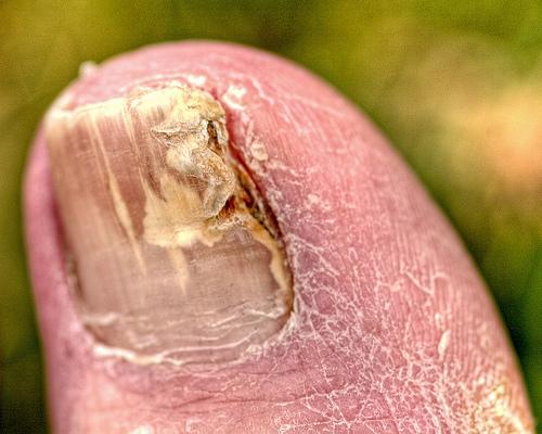 toenail-fungus-picture