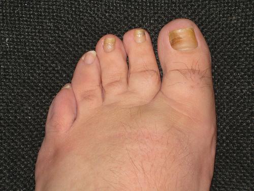 nail-fungus-example