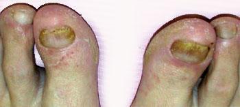 symptoms-of-nail-fungus