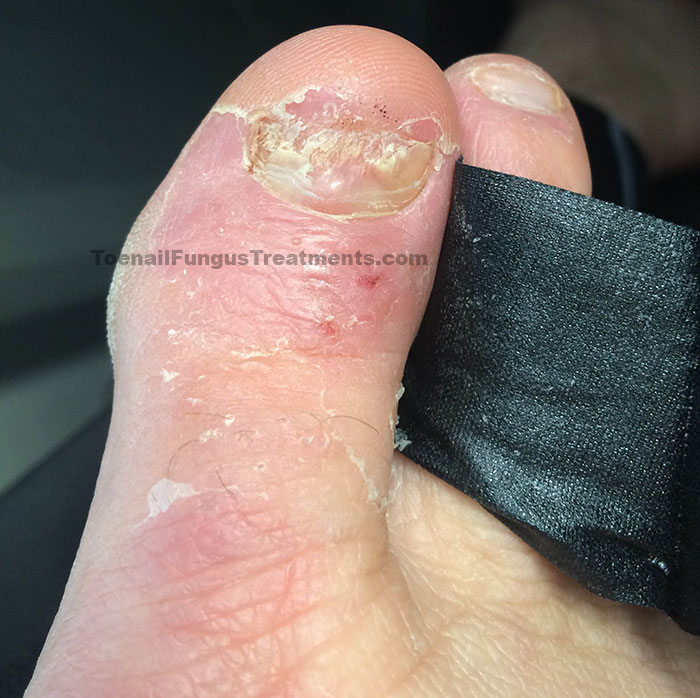 My Personal Journey in Curing Nail Fungus for Good - A Weekly ...